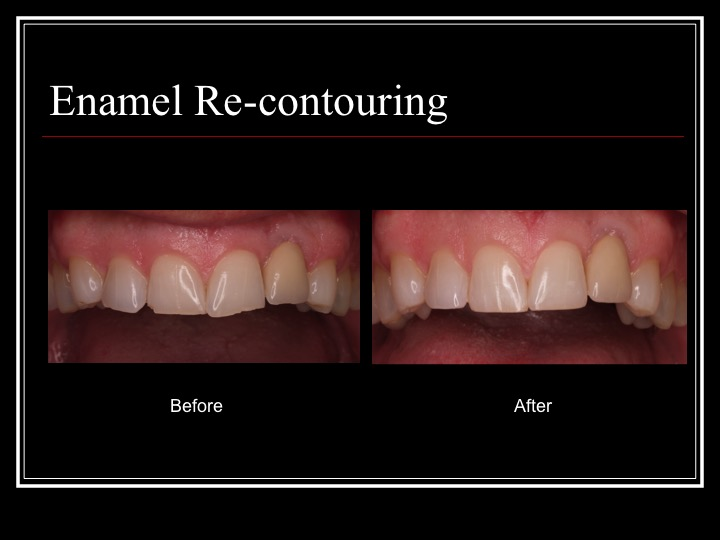 Enamel Tooth Re-contouring Treatment