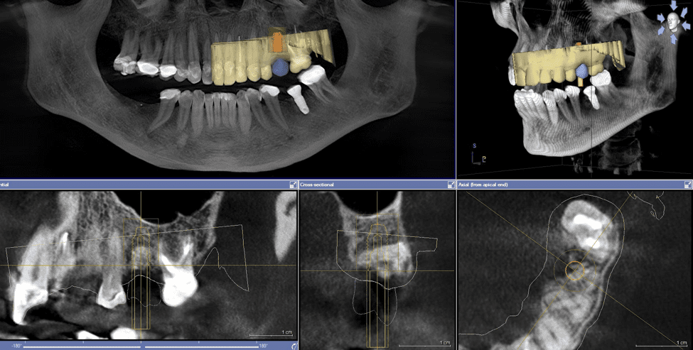 dental-cone-beam-computed