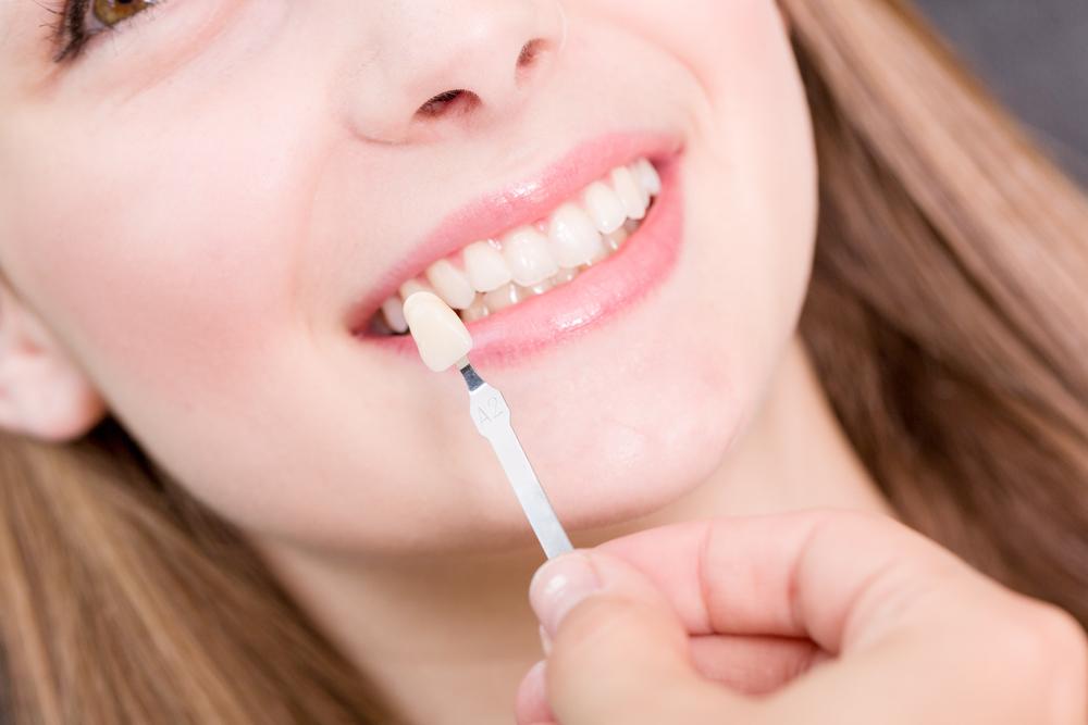 dental restoration in hyderabad