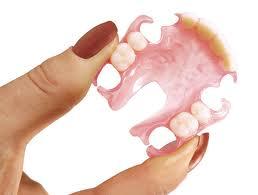 flexi-partial-denture
