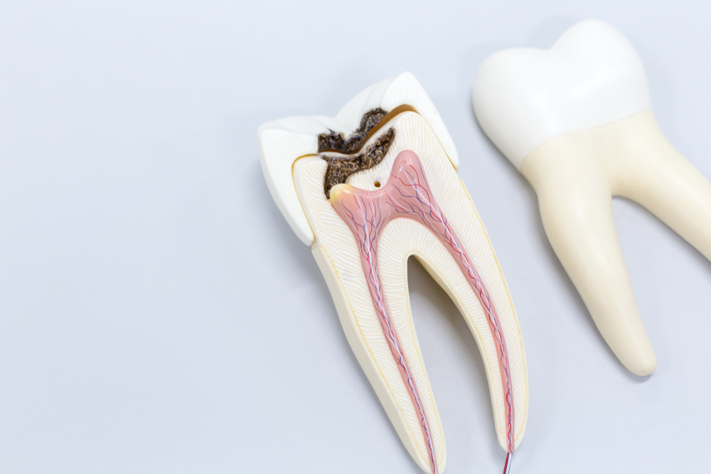 root canal in hyderabad