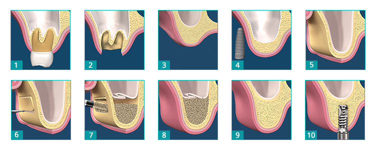 Sinus-Lift.jpg